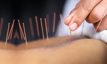 Acupuncture, Berkley, MI
