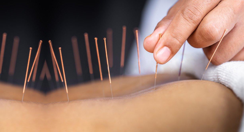 Acupuncture, Berkley, MI