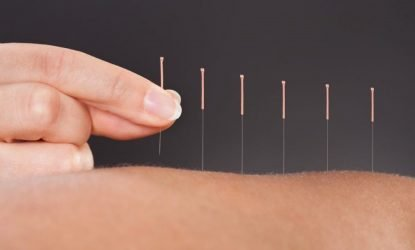 acupuncture-berkley-mi-chinese-medicine